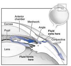 drenaje-acuoso-glaucoma