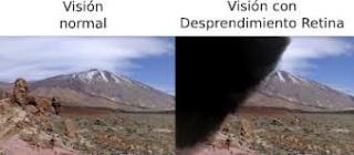 retina-desprendimiento