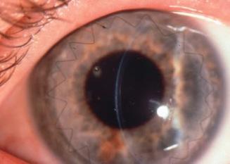 trasplante-lamelar-córnea