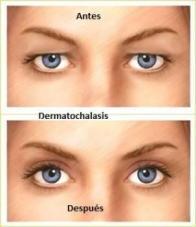 dermatochalasis