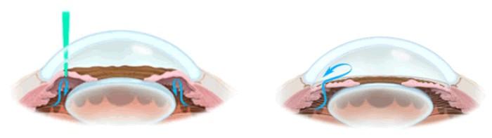 iridotomia